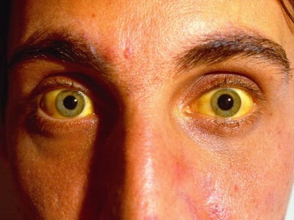 Risiko Wie Tropische Gelbsucht Stratego By Rag