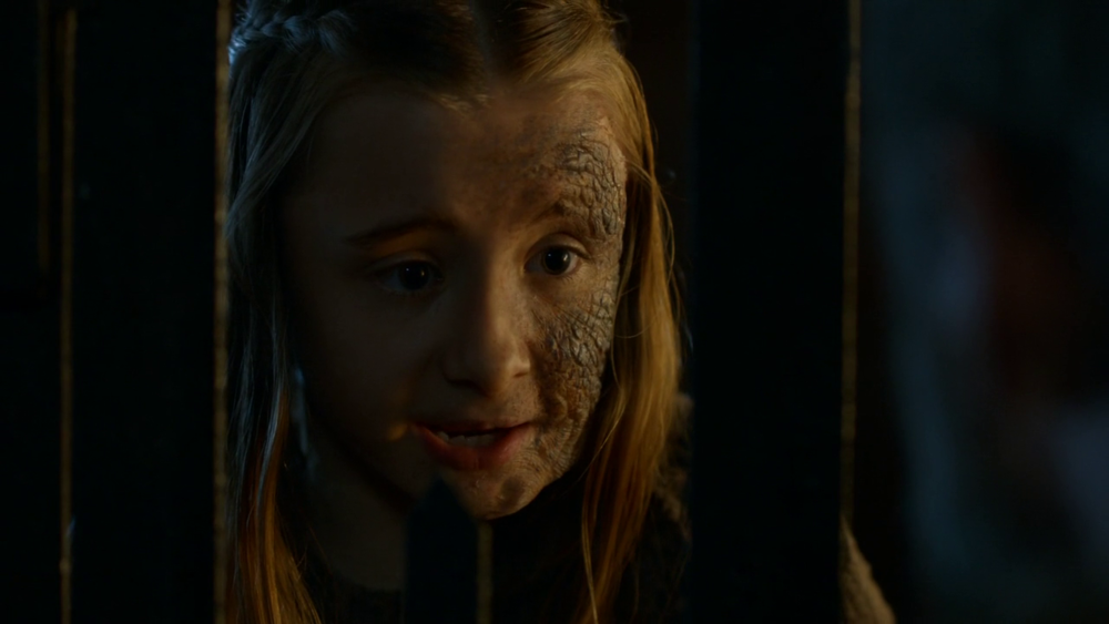 Shireen Baratheon est la fille cadette de Stannis Baratheon et Selyse    Shireen Baratheon Game Of Thrones
