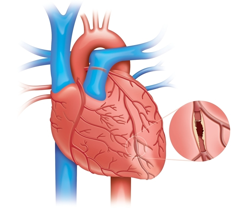 thesis on myocardial infarction Myocardial infarction or acute myocardial infarction is the medical term for an event commonly known as a heart attack.