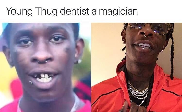 Young Thug – With Them Lyrics | Genius Lyrics K Michelle Before And After Teeth