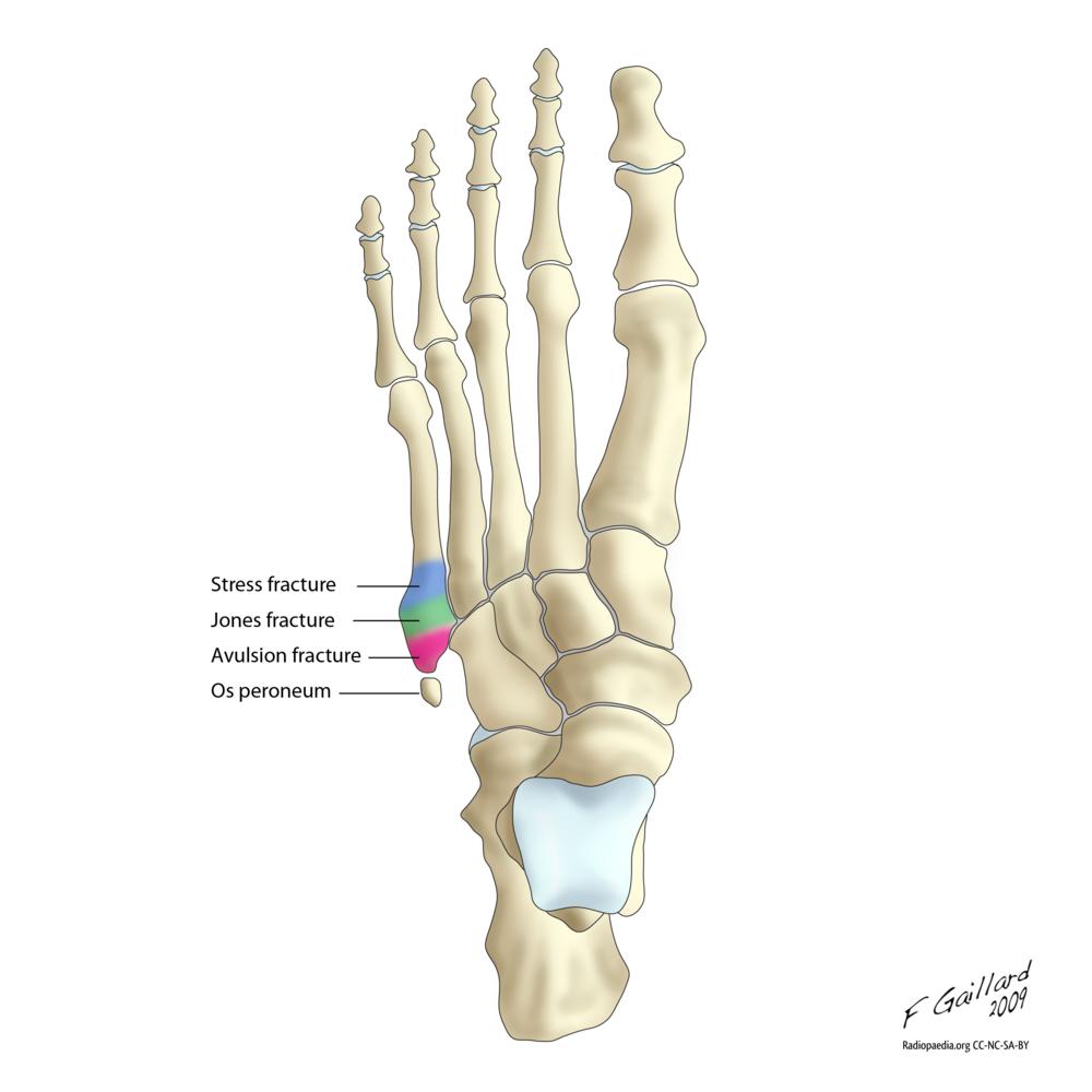 pseudo jones vs jones vs stress fracture medicalrojak